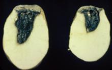 Image related to Potato (Solanum tuberosum)-Bacterial Soft Rot, Blackleg and Lenticel Rot